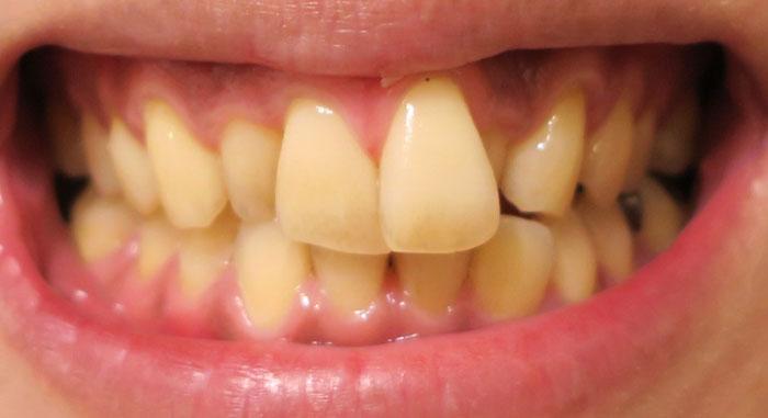 白い歯がみるみる黄ばむ!その原因は何なのか?
