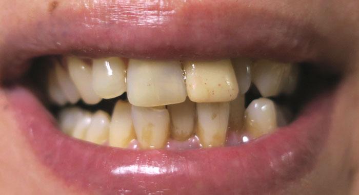 加齢による歯そのものの着色