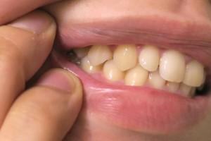 歯そのものが黄ばんでく場合