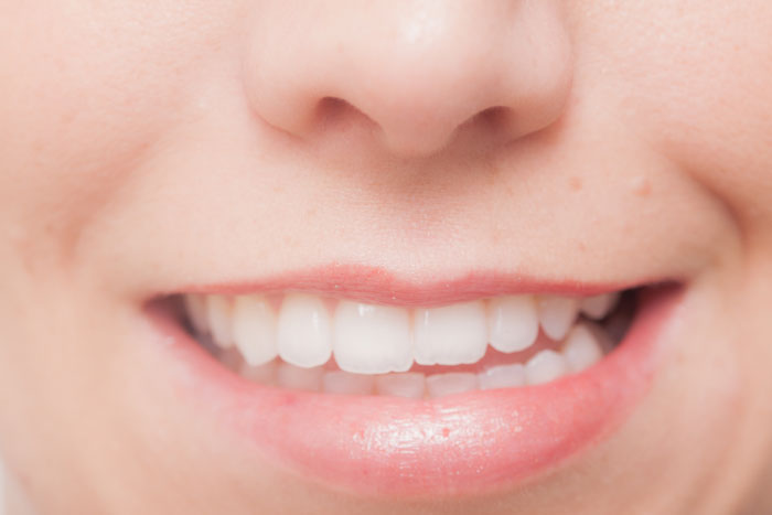 その日に白い歯を手に入れることができる