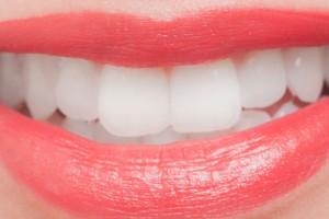 歯がつるつる