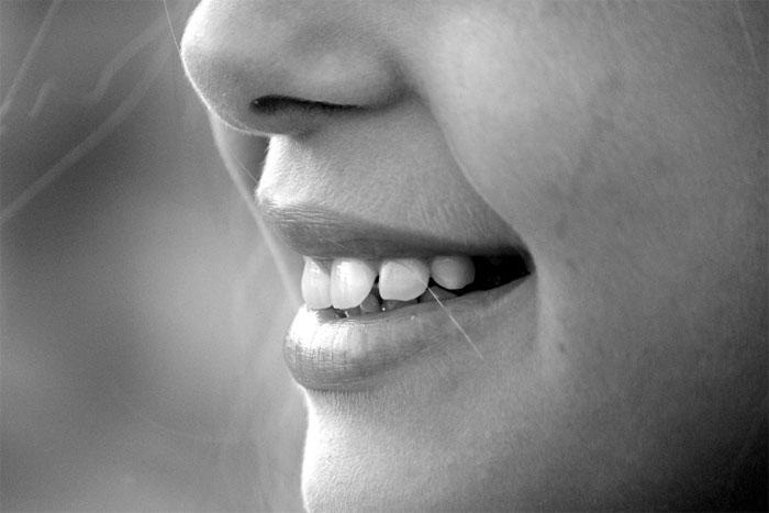 差し歯のオフィスホワイトニングは?
